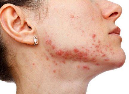 acne-adultos